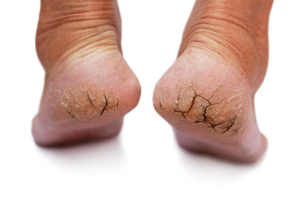 Nguyên nhân gây tróc da chân vào mùa đông