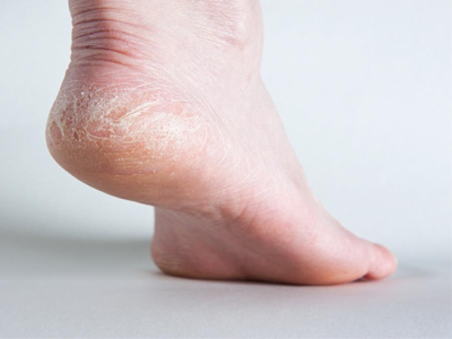 Tìm hiểu nguyên nhân tróc da chân vào mùa hè