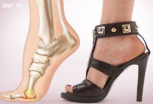 Những thói quen có thể gây ảnh hưởng xấu cho đôi chân của bạn