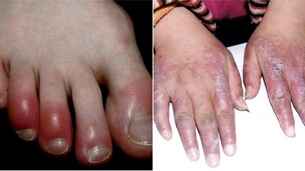 Cước chân gây đau nhức khó chịu